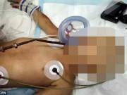 Tin tức - TQ: Bé 4 tuổi bị thanh sắt đâm xuyên từ miệng qua não