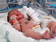 Làm mẹ - Em bé suýt tử vong vì người lớn không rửa tay trước khi bế