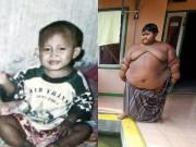 Làm mẹ - Hình ảnh khó tin trước và sau 8 năm của cậu bé béo nhất thế giới