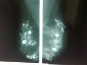 Sức khỏe - Hàng trăm khối silicon vón cục trong ngực bệnh nhân