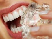 Sức khỏe - Mẹo nhỏ chữa đau nhức răng hiệu quả nhất