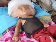 Làm mẹ - Xót xa bé gái đầu to gấp 3 lần vì não ngập đầy nước