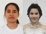 Làm đẹp - Cô gái mặc cảm về ngoại hình đổi đời nhờ phẫu thuật thẩm mỹ