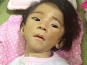 Tin tức - Cháu bé 14 tháng nặng 3,5kg đã tăng được 350gr, chuẩn bị xuất viện