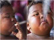 Làm mẹ - Thân hình 3 năm sau của cậu bé 5 tuổi hút 40 điếu thuốc
