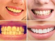 Làm đẹp - Tự chế hỗn hợp lấy cao răng sạch bóng như đi nha sĩ