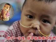 Tin tức - Những đứa trẻ sinh ra không được ăn bằng miệng
