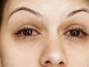 Sức khỏe - 15 nguyên nhân khiến mắt bạn thường xuyên bị đỏ