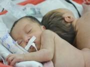 Tin tức - Thông tin mới nhất về hai bé song sinh dính liền mông, không có hậu môn
