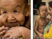 Tin tức - Xót xa nụ cười của cậu bé 4 tuổi trong hình hài ông lão 80