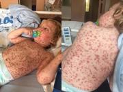 Làm mẹ - Căn bệnh đáng sợ mà em bé này mắc phải, mọi trẻ em có thể tránh bằng một mũi tiêm