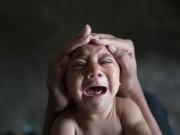 Tin tức - Virus Zika ở Việt Nam ít có khả năng gây dị tật đầu nhỏ cho trẻ sơ sinh
