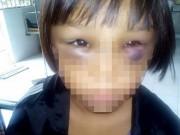 Tin tức - Sức khỏe bé gái 7 tuổi nghi bị mẹ kế bạo hành đã tốt hơn