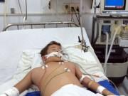 Tin tức - Cứu sống bệnh nhi sốc sốt xuất huyết nặng