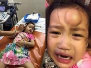 """Làm mẹ - Ốc Thanh Vân hốt hoảng với khuôn mặt có cục sưng """"to như quả ổi"""" của con gái"""