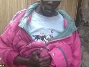 Tin tức - Nỗi khổ của chàng trai Kenya có 'của quý' dài gấp 10 lần so với bình thường
