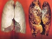 Sức khỏe - Bị ung thư phổi, phải làm gì để chiến thắng bệnh hiểm nghèo?