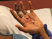 Làm mẹ - Cậu bé 13 tuổi suýt mất tay chỉ vì vết cứa do mũ bảo hiểm