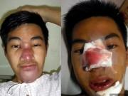 Nâng mũi với giá 250 ngàn đồng, chàng trai phải chịu biến chứng kinh hoàng