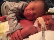 Bà bầu - Nghẹn lòng với bức ảnh bé sơ sinh ôm người em đang cận kề cái chết
