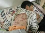 Tin tức - Cậu bé 10 tuổi bị cha dượng đánh đập nhiều lần thâm tím người