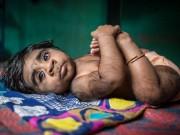 "Tin tức - Mẹ đau khổ khi sinh con trai ""ma sói"" tỉ lệ gen hiếm 1/1 tỉ"