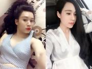 Làm đẹp - Dao kéo hỏng, hotgirl Quảng Ninh hối hận vì mặt bị đơ cứng