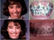 Làm đẹp - Clip niềng răng thu hút 10 triệu lượt xem một ngày sẽ khiến bạn sửng sốt