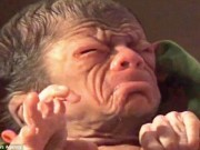 Tin tức - Mắc bệnh lạ, bé trai vừa chào đời đã mang khuôn mặt như ông lão 80