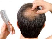 Làm đẹp mỗi ngày - Những nguyên nhân gây rụng tóc không ai ngờ đến