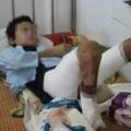 Tin tức - Mẹ đẩy con 11 tuổi vào đống lửa gây bỏng nặng