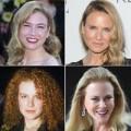 Làm đẹp - Sao Hollywood với khuôn mặt biến dạng