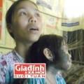 Tin tức - Cuộc sống khốn khổ của bé gái bị lông mọc khắp người