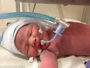 Làm mẹ - Bé sơ sinh tắt thở 26 phút bỗng nhiên sống dậy