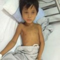 Tin tức - Bé trai nguy kịch vì nhiễm xoắn khuẩn vàng da từ động vật