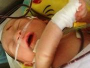 Tin nóng trong ngày - Bé sơ sinh văng khỏi bụng mẹ đã tự bú sữa