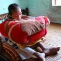Tin trong nước - Xót xa thiếu nữ 10 năm ôm gối ngủ ngồi