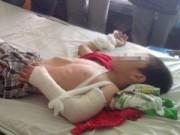 Tin tức - Bé 6 tuổi bị dượng đánh: Phát hiện chấn thương sọ não