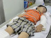 Tin tức - Bé 6 tuổi kể lại giây phút bị cha dượng đánh nứt sọ