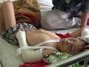 Tin tức - Bé 6 tuổi bị cha dượng đánh cứ ăn là nôn ra