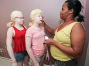 Sức khỏe - Cha mẹ da đen sinh con da trắng