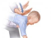 Làm mẹ - Cẩm nang sơ cứu trẻ bố mẹ CẦN biết