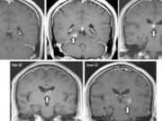 Chuyện lạ - Sốc: Sán dây dài 5cm sống trong não người 4 năm