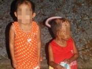 Tin tức - Cảm thương bé 7 tuổi mắc bệnh lạ phồng rộp toàn thân
