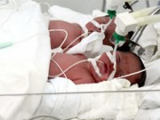 Mang thai 6-9 tháng - Hy hữu ca sinh 4 tại BV Phụ sản Trung ương