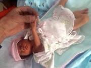 Bà bầu - TQ: Bé sinh non sống sót kỳ diệu sau 2 giờ chôn sống