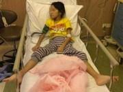 Tin tức - Phẫn nộ bé gái 8 tuổi bị cha nuôi đánh dập thận