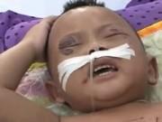 Tin tức - Bé trai 2 tuổi bị bà ngoại đánh đã ổn định sức khỏe