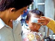 Nuôi con - Thực hư tác dụng của miếng dán hạ sốt cho trẻ