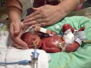 Bà bầu - Ca sinh non đầy ám ảnh ở tuần 25 thai kỳ